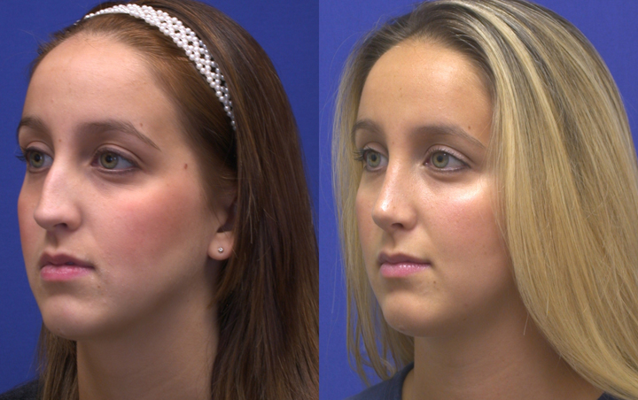 crooked nose after revision rhinoplasty